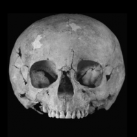 Oldest case of Down's syndrome from medieval France